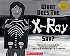 What Does the X-Ray Say? by Second Grade…
