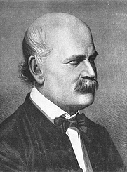 Author photo. Ignaz Semmelweis 1860 (Copper plate engraving by Jenő Doby). From source: Ignaz Semmelweis 1860 (Kupferstich von Jenő Doby). Wikimedia Commons.